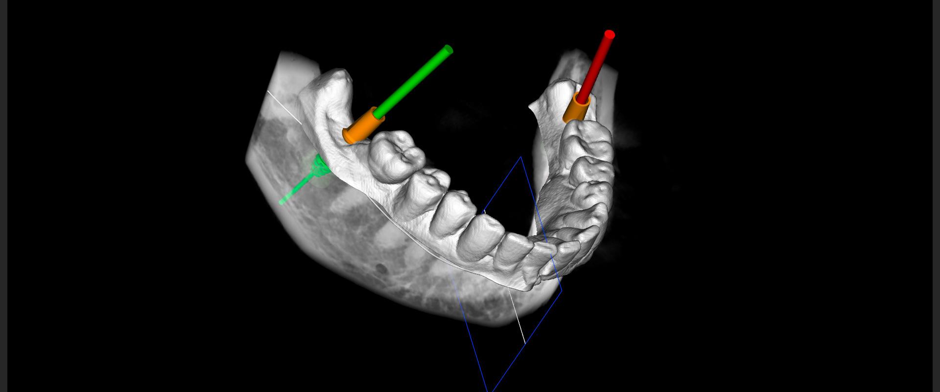 Dr. Schnitzer – Fachzahnärztliche Praxis - 3D-Diagnostik 1